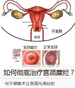 如何彻底治疗宫颈糜烂?